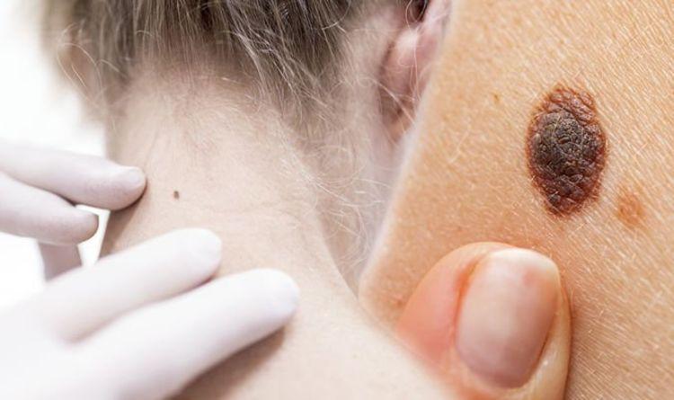 Cancer de la peau : huit signes majeurs avertissant que votre imperfection ou grain de beauté peut être cancéreux