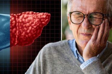 Symptômes de la stéatose hépatique: trois signes avant-coureurs graves dans votre bouche - que rechercher