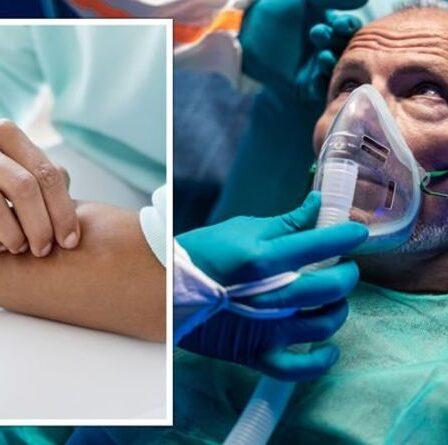 AVC : Le signe sur votre peau qui pourrait augmenter votre risque d'AVC