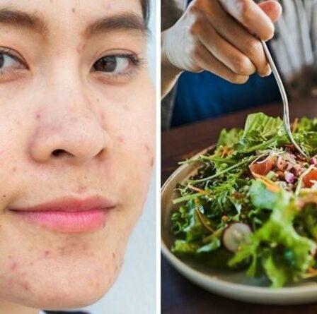 Régime acné : les 3 aliments à éviter pour une peau nette