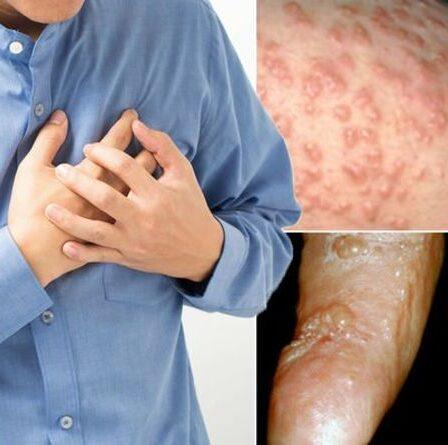 Symptômes des maladies cardiaques : pourquoi vous ne devriez jamais ignorer ces cinq signes subtils sur votre peau