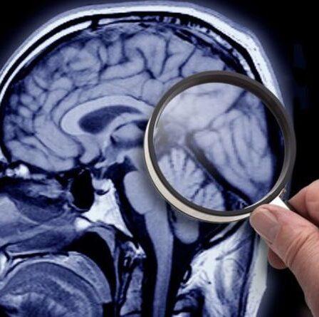 La percée d'Alzheimer alors qu'une nouvelle étude révèle la cause probable de la maladie dans la «fuite cérébrale»