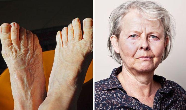 Symptômes d'hypercholestérolémie: quelle est la longueur de vos ongles?  Un avertissement de maladie artérielle