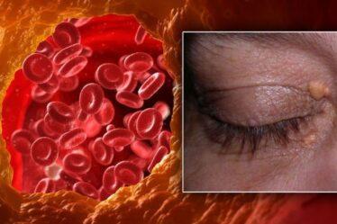 Symptômes d'hypercholestérolémie: signe dans votre œil - avez-vous ces «zones jaunâtres» de la peau?
