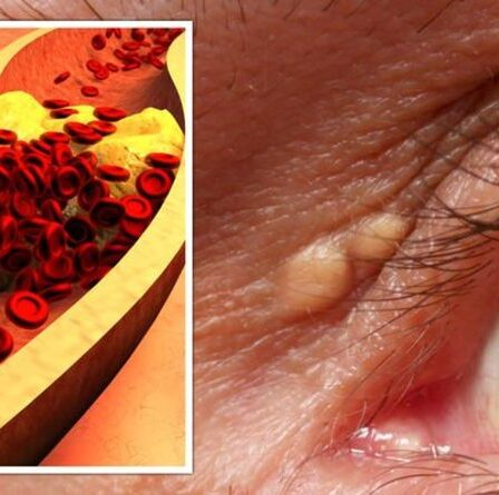 Symptômes d'hypercholestérolémie: signes peu fréquents dans vos yeux indiquant que votre taux est trop élevé