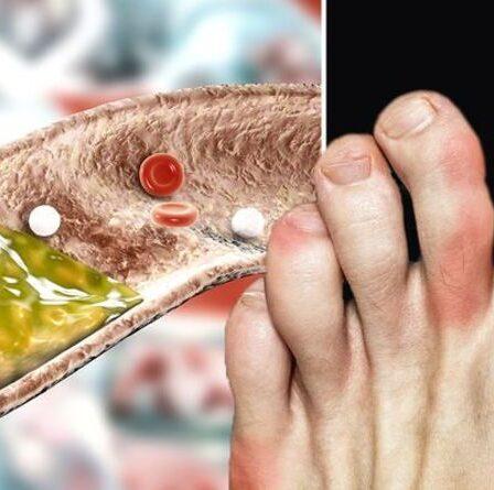 Symptômes d'hypercholestérolémie: trois signes d'avertissement visuels d'un taux élevé de cholestérol sur vos pieds